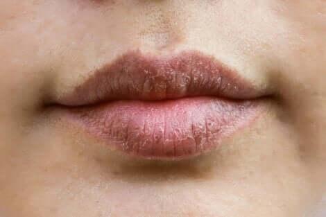 Chapped lips.