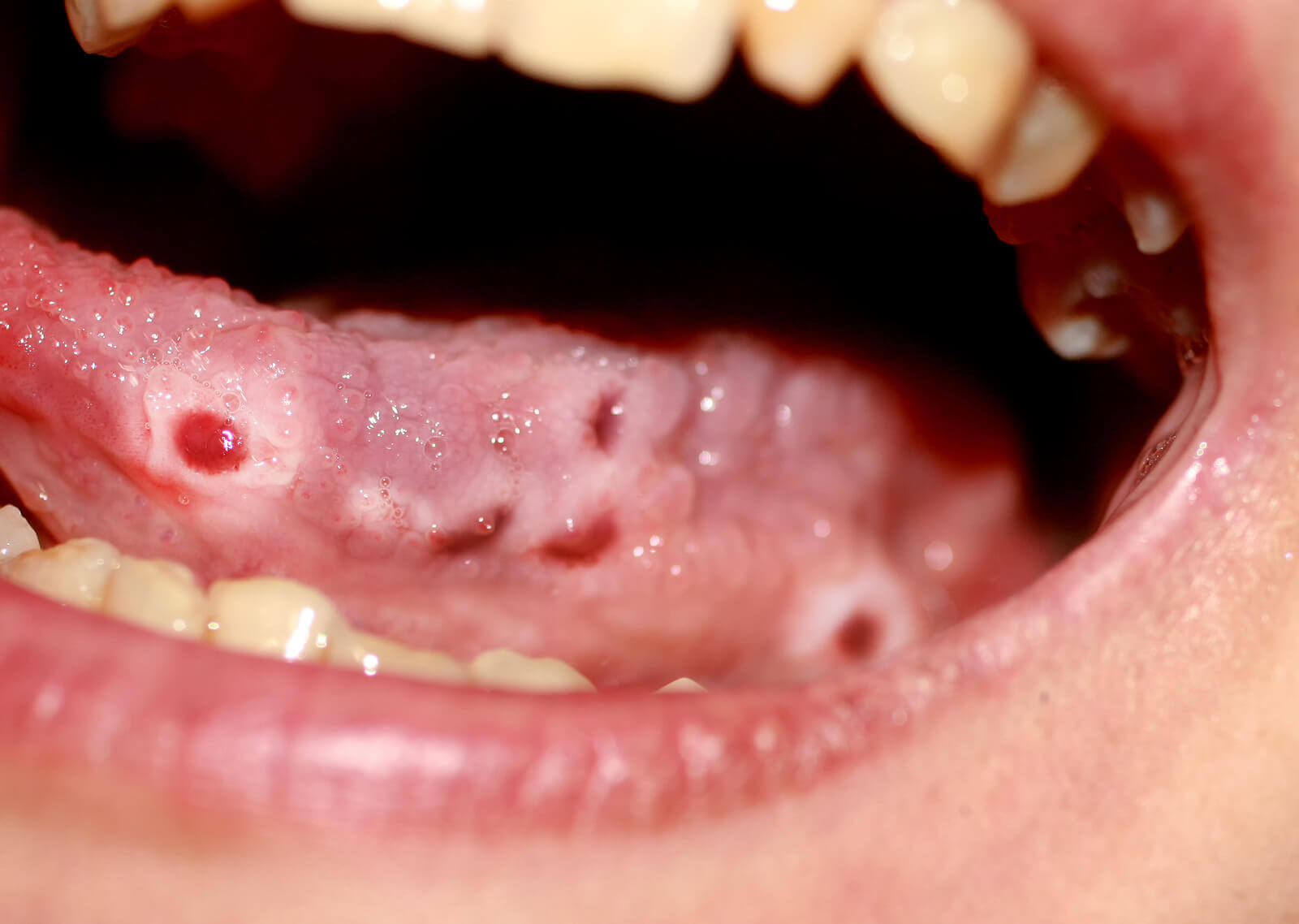 Cold sores on a tongue.