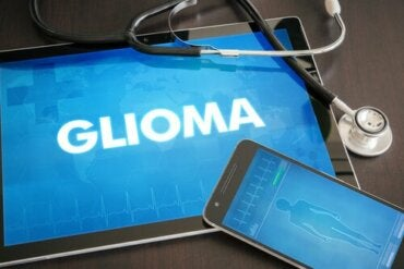 What Is a Glioma Tumor?