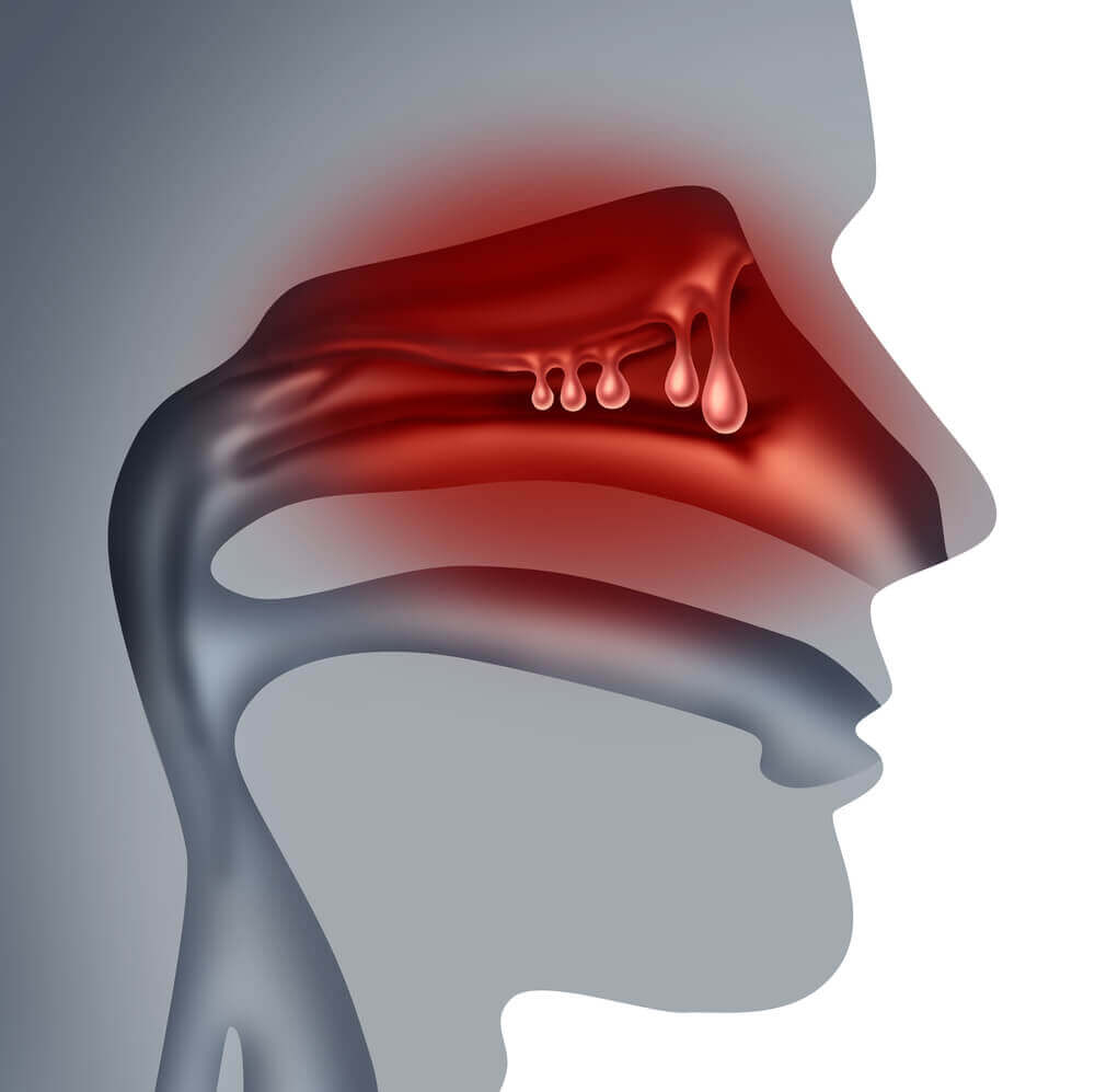 Nasal polyps scheme.