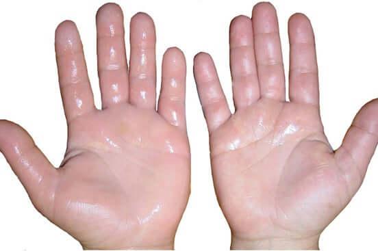 Sweaty hands.