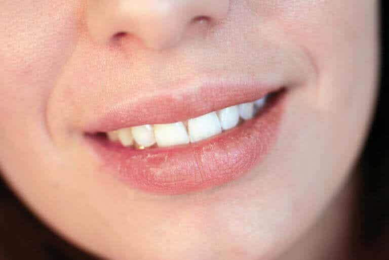 Causes of Dry Lips