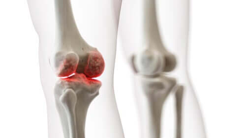 A digital representation of knee joint pain.