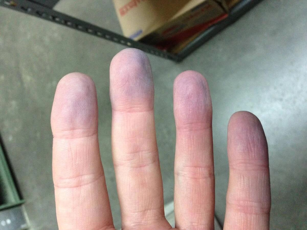 Fingers with symptoms of cyanosis.