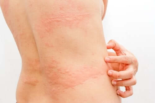woman with cold urticaria