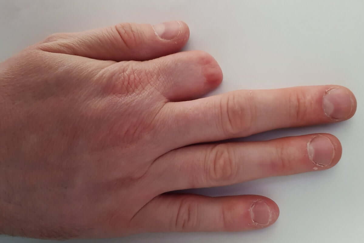 A hand with an amputated finger.
