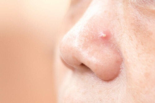A nose with a pimple.