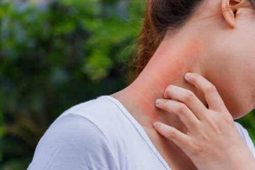 The Link Between Dermatitis and Corticosteroids