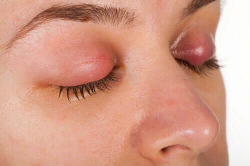 Symptoms and Treatment of Eyelid Dandruff