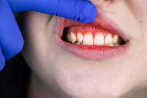 Origin, Symptoms, and Treatment of Trench Mouth