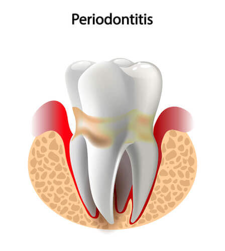 A tooth with periodontitis.