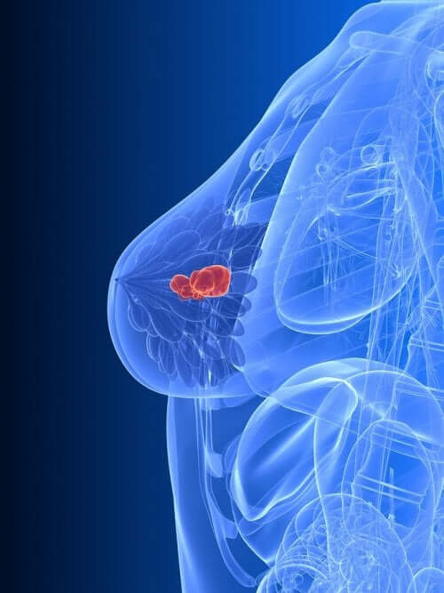 Breast cancer diagram treated with hormone therapy