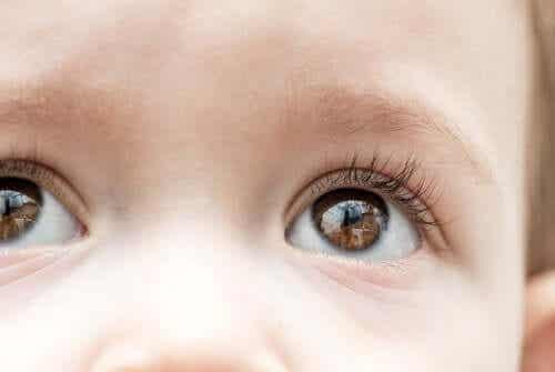 Childhood Glaucoma