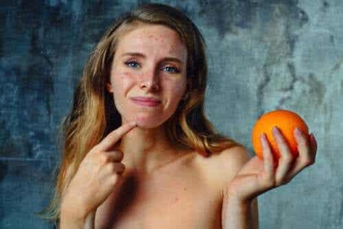 Citrus Allergy: Symptoms, Treatment, and Recommendations