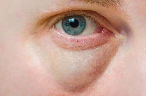 Causes of Puffy Eyelids and Treatments