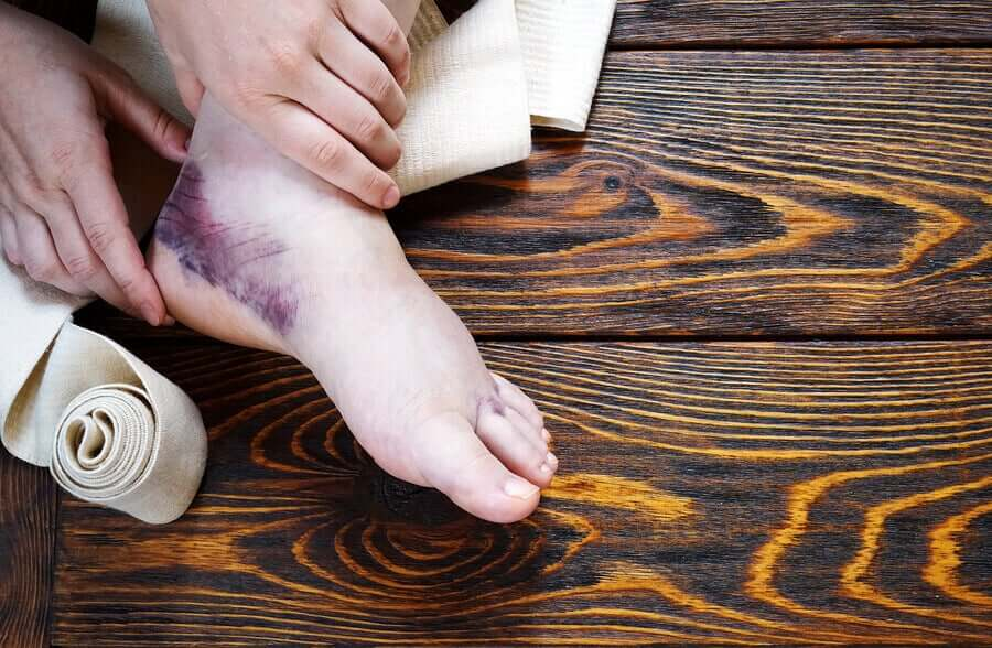 A swollen foot with a large purple bruise.