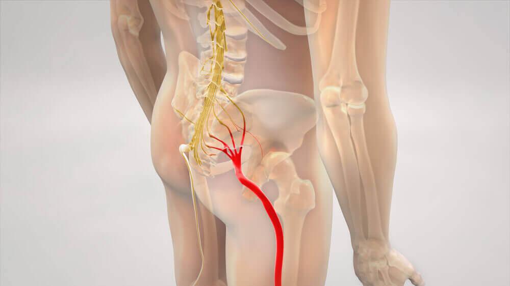 A digital illustration of the sciatic nerve.