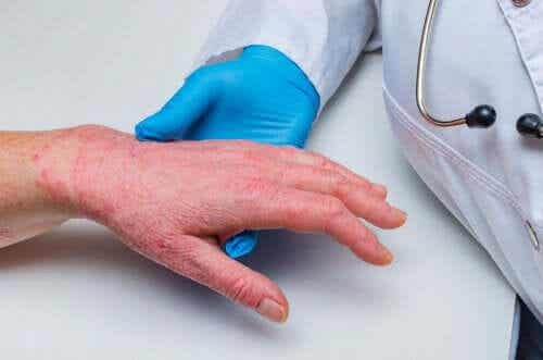 Psoriasis and Coronary Heart Disease: How Are They Related?