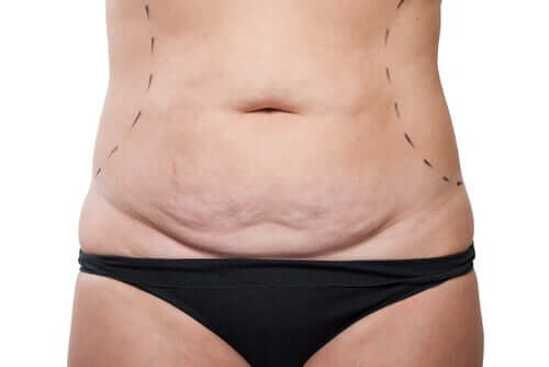A woman who's had various pregnancy and is going to have tummy tuck.