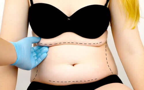 What is Abdominoplasty, or Abdominal Wall Surgery?
