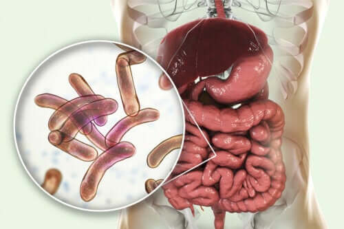 Treatment for Bacterial Overgrowth