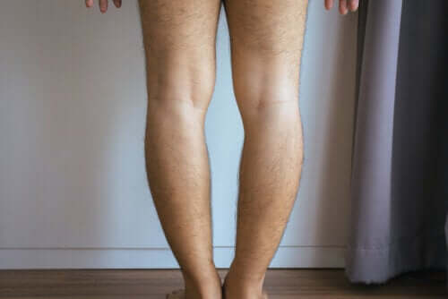 Genu Varum or Bowlegs: Causes and Treatment
