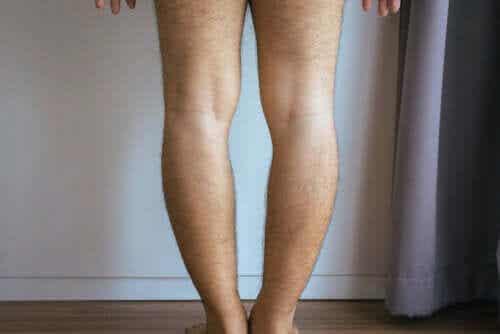 Genu Varum or Bowlegs: Causes and Treatment
