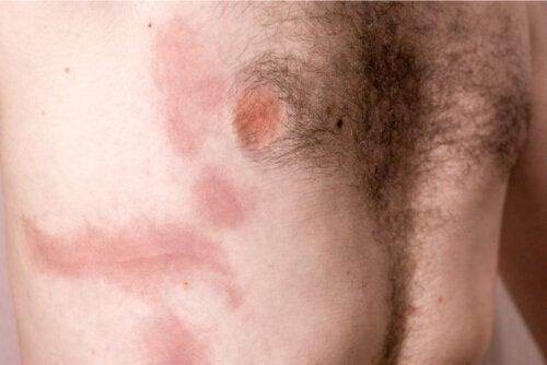 Rib Contusion: Causes, Symptoms and Care
