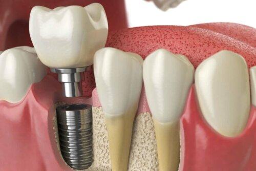 dental implant close up cartoon