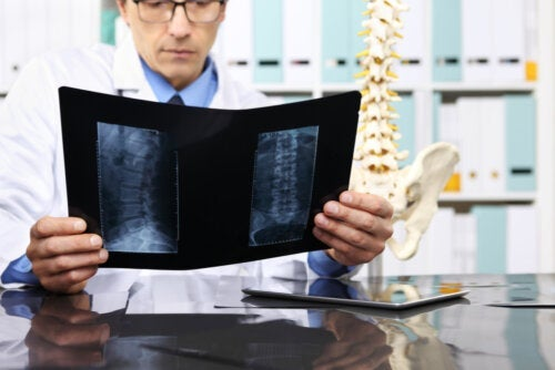 When Is it Necessary to Operate on a Herniated Disc?