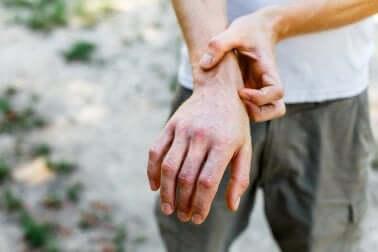 A man scratching his wrist.
