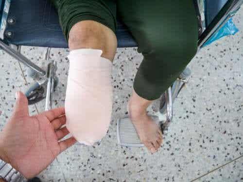 What's Phantom Limb Syndrome?