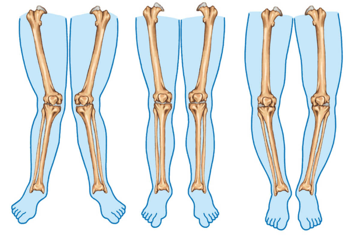 Different types of legs.