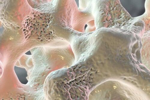 Close up of a weak bone structure