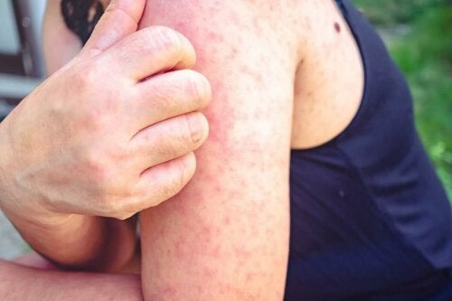 woman with a rash on her arm scratching it