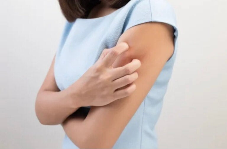 Atopic Skin: What Is It and What Causes It?