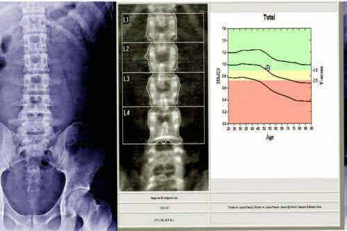 What is a Bone Densitometry?