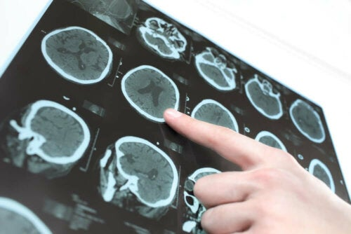 A person pointing at an image on a CT scan.