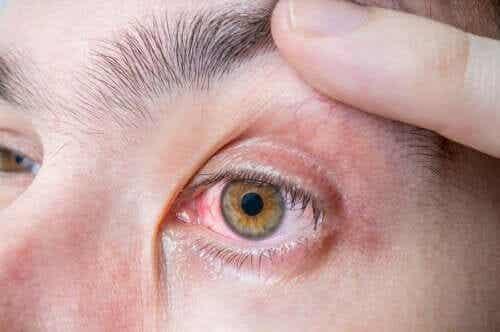 Ocular Melanoma: Symptoms and Causes