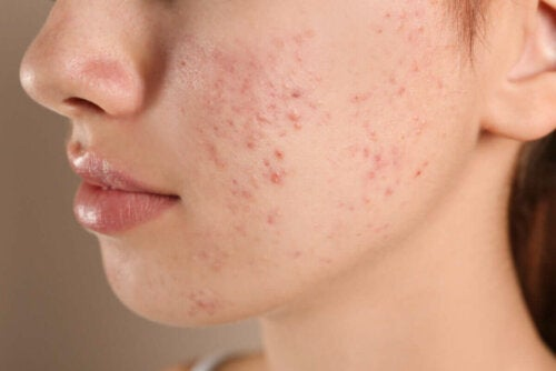 A person with acne.