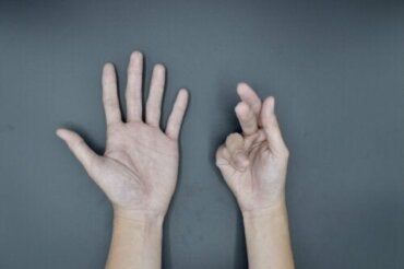 Causes of Dupuytren's Contracture and Treatments