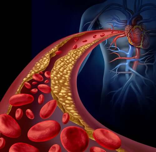 An illustration of a clotted artery.