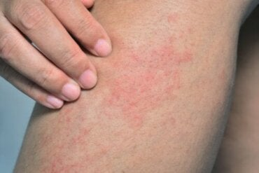 Swimmer's Itch: Causes, Symptoms and Treatment