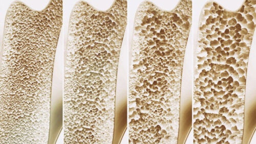 Various bone densities.