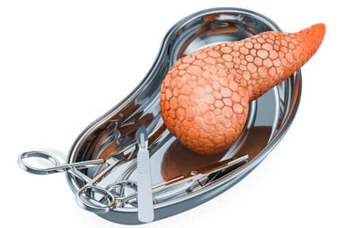 Pancreas Transplants: Why Are They Performed and What Are the Risks?