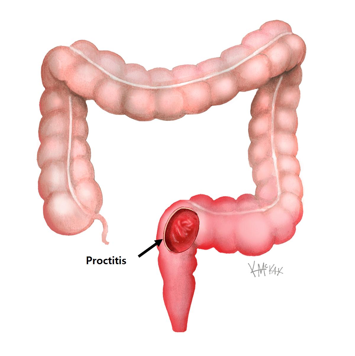 proctitis diagram