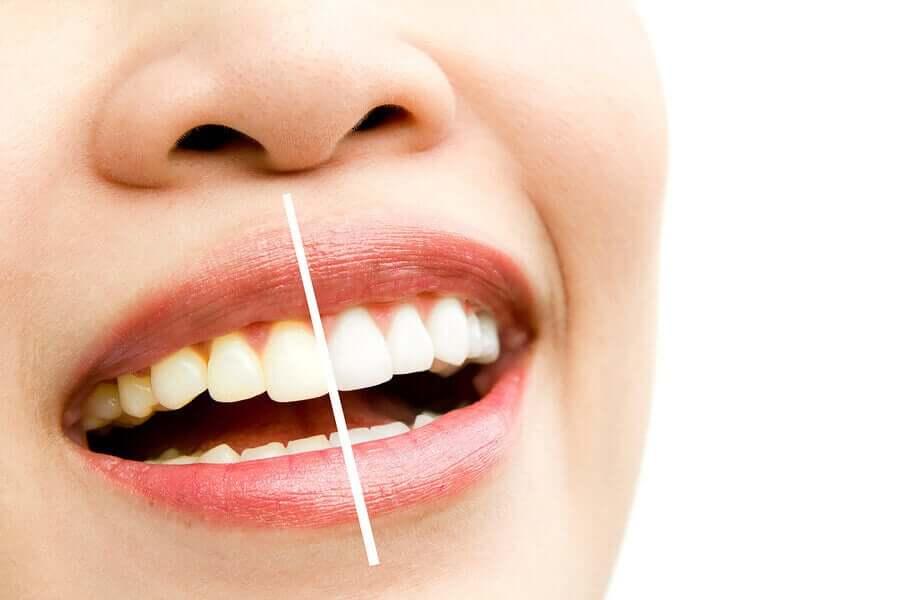 Some teeth stains vs. white teeth.