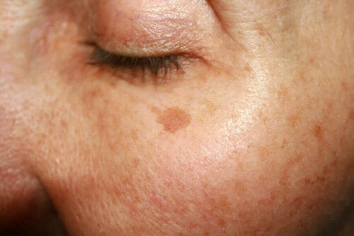 A woman with spots on her skin.