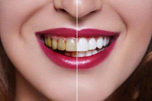The Causes of Stained Teeth