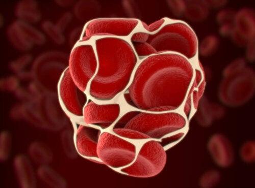 En illustration af blodprop, som forebygges ved fibrinolyse